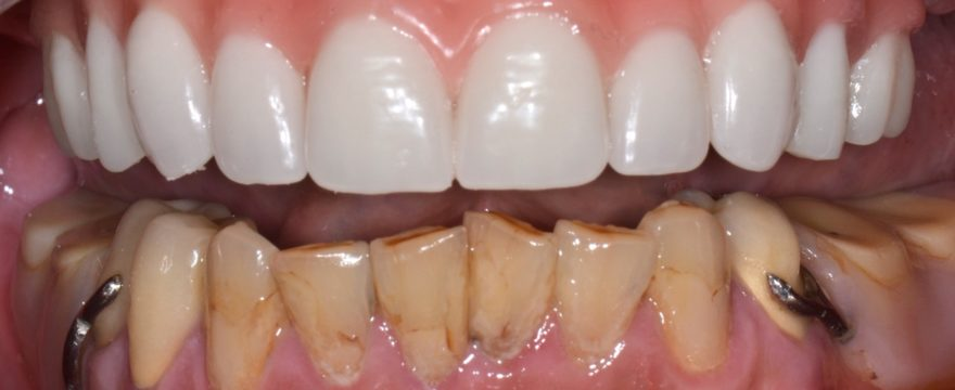 Denture wearers can now get stability and retention