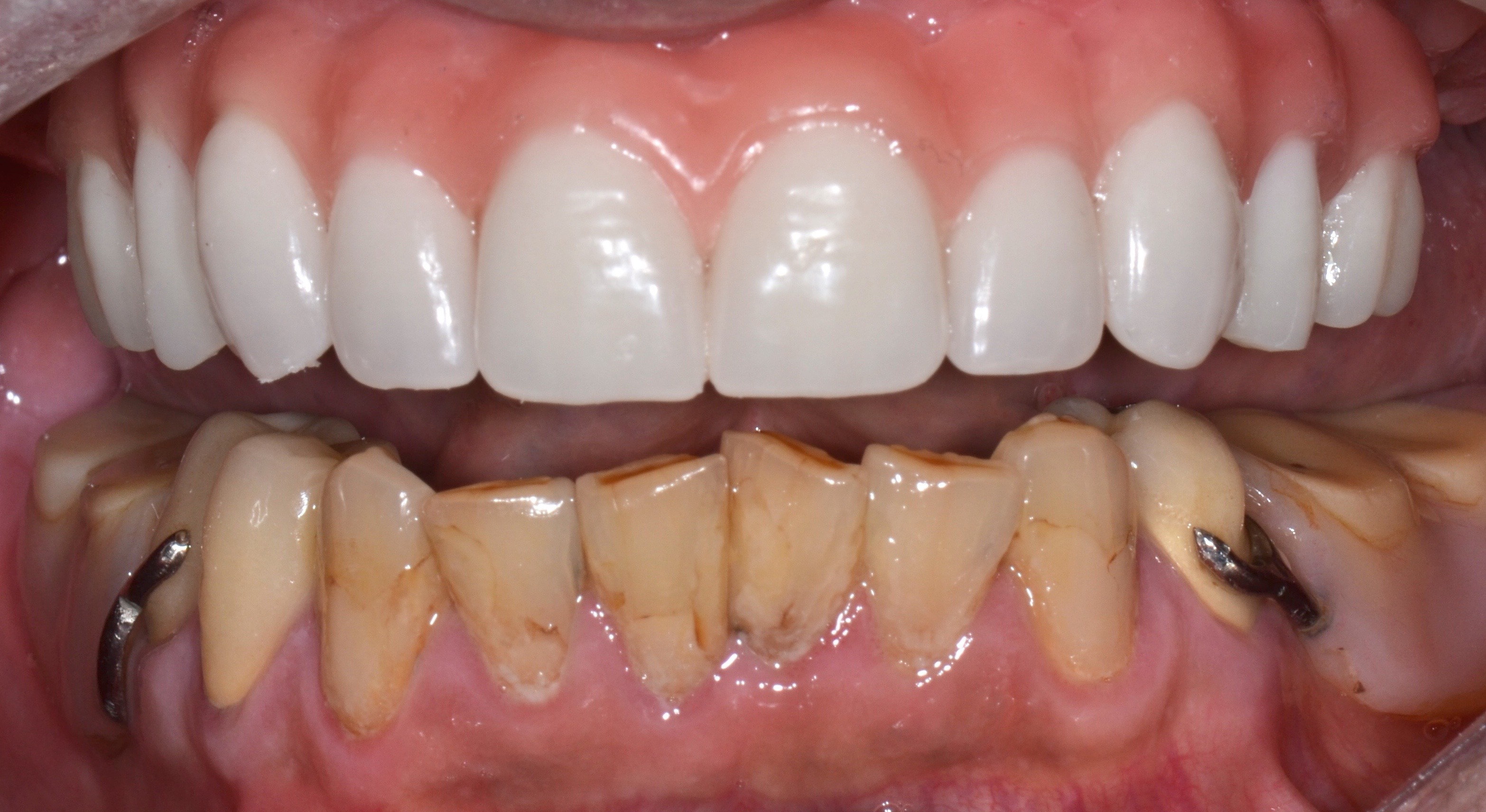 Denture wearers can now get stability and retention ...